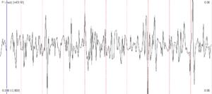 Head_movement_vestibulogram_signal