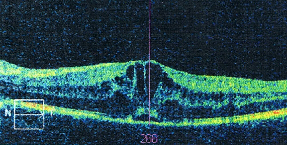 Automatic Detection of Macular Cysts