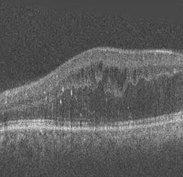 Curvelet speckle denoising