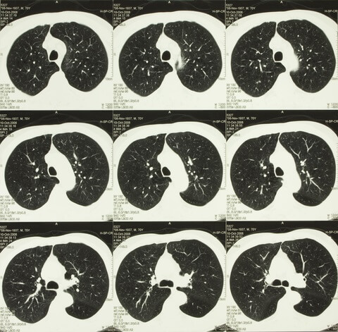 Lung CT scans