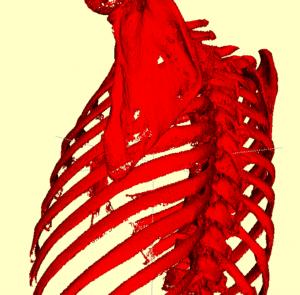 Bones and Skeleton Segmentation