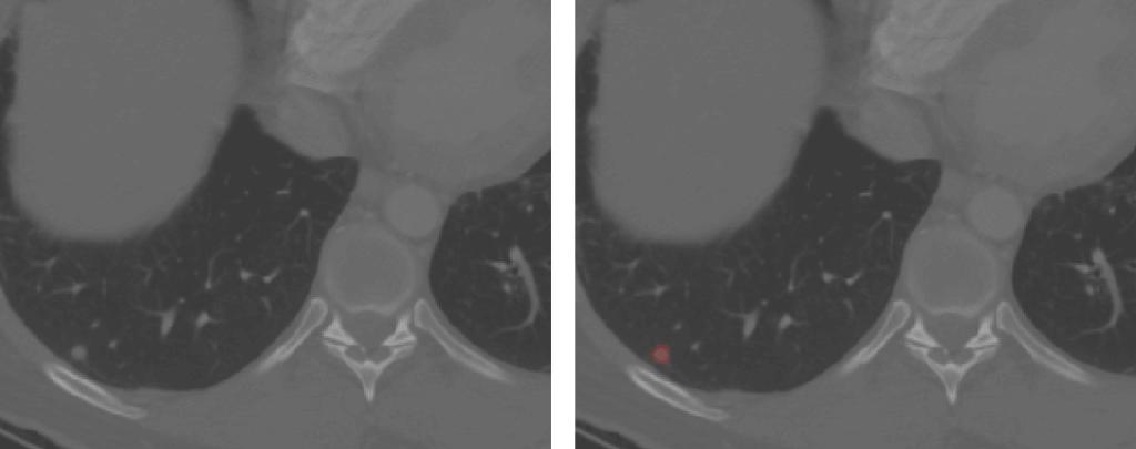 Lung nodule segmentation