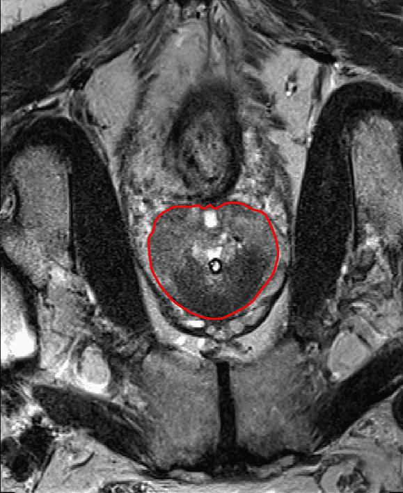 prostate segmentation