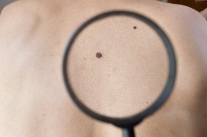 Checking melanoma on back of man