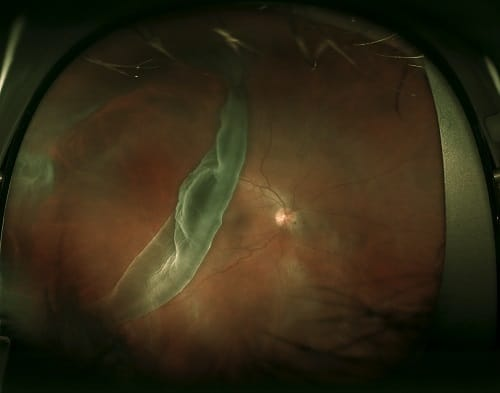 Giant Retinal Tear