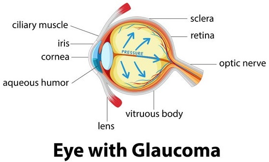 Glaucoma Detection by Deep Learning