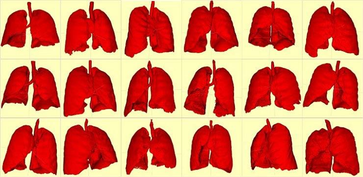 Lungs segmentation