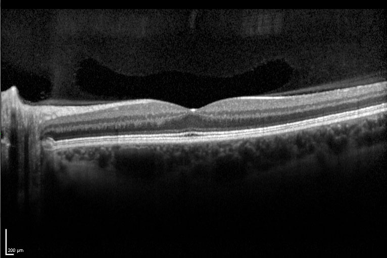 Spectral Domain Optical Coherence Tomography (SD-OCT)