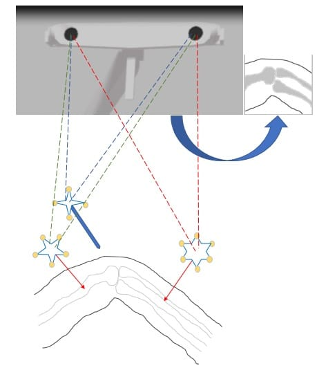 Markers in Orthopedic navigation system