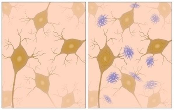 Alzheimer's Disease - AD