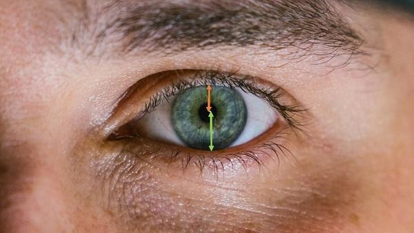 Eyelid Drooping - MRD1 and MRD2