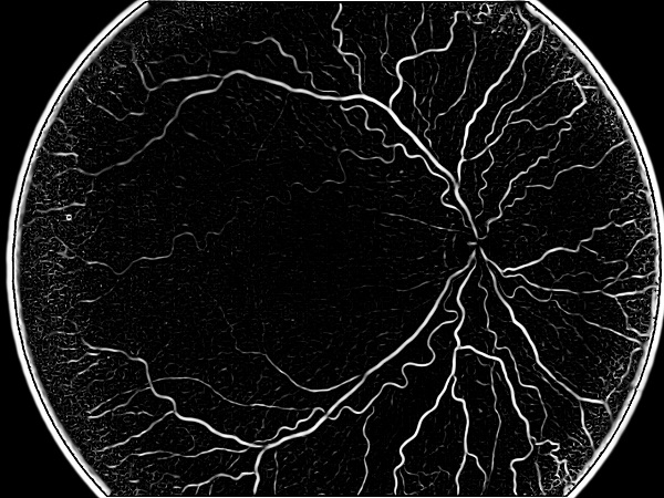 ROP - Vessel tortuosity in Retinopathy of Prematurity