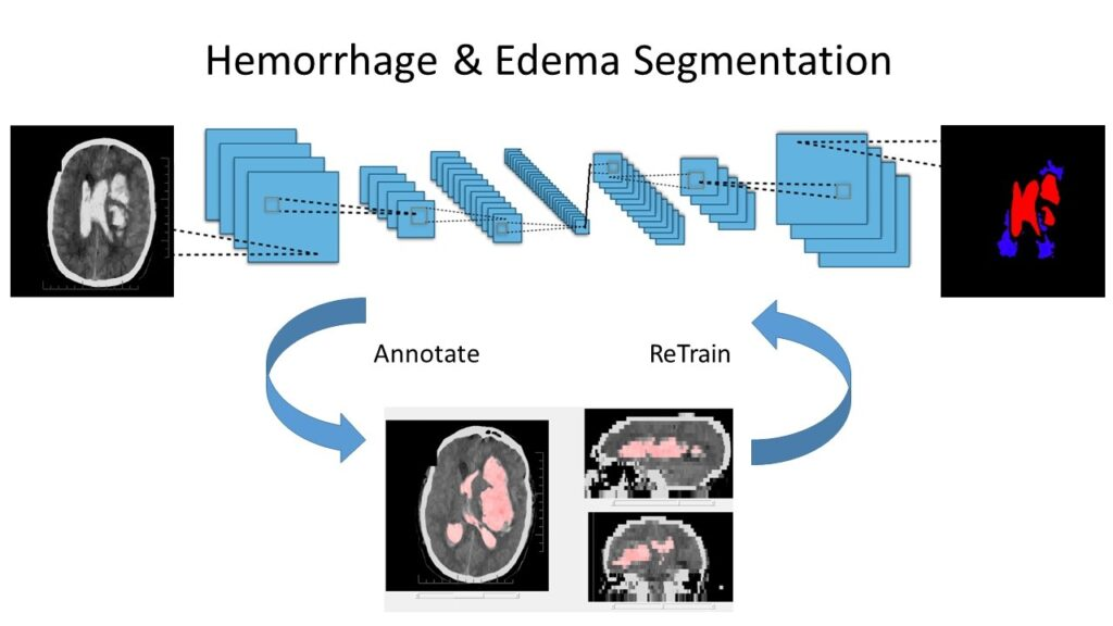 Hemorrhage and Edema segmentation with Deep Learning