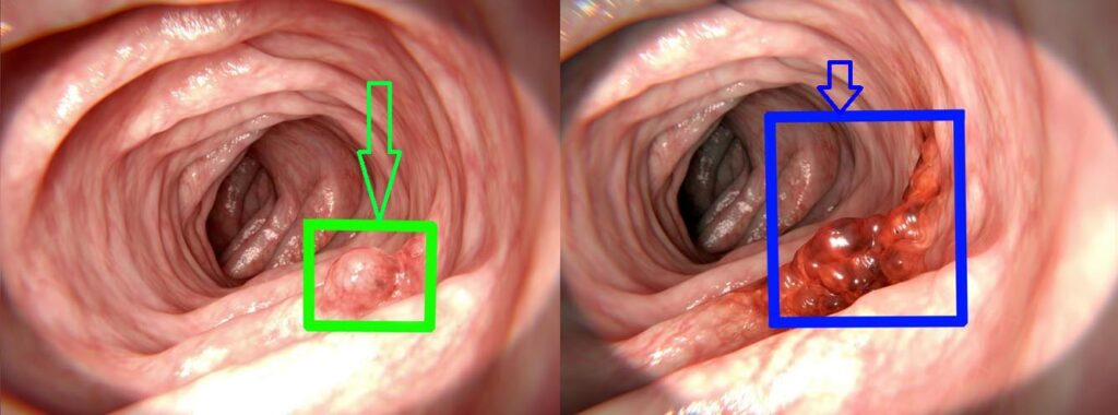 Endoscopy with cancer detection