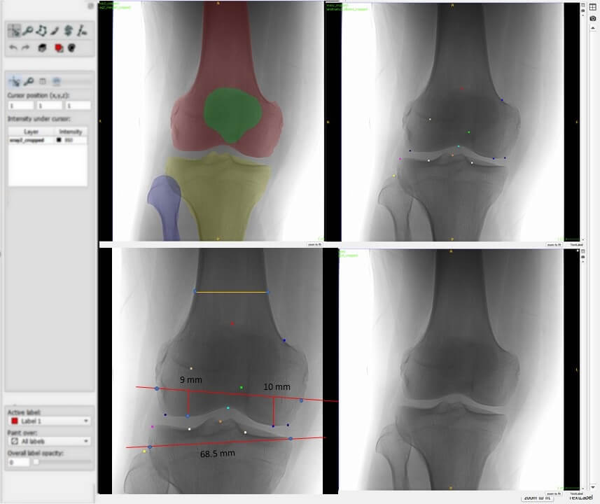 Knee Segmentation and Landmark Detection