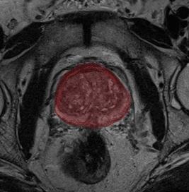Segmented prostate gland from MRI scan