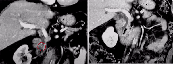 AI in ERCP strictures